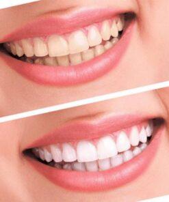 Professional Teeth Whitening Kit